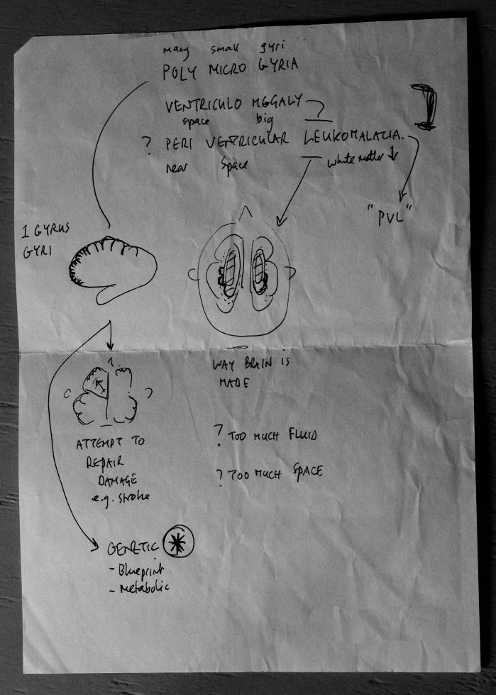 Neurologist sketch: MRI in easy terms.